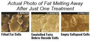The Fat Melting Machine
